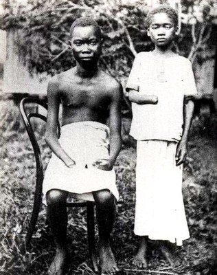 """Two youths from the Equator District"", Schwarz-Weiß-Photographie, ca. 1904, Photographin: Alice Harris / Anti-Slavery International; Bildquelle: Twain, Mark: King Leopold's Soliloquy: A Defense of His Congo Rule, 2. Aufl., Boston 1905, wikimedia commons http://en.wikipedia.org/wiki/File:Amputated_Congolese_youth.jpg."